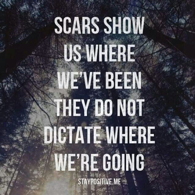 Scars Remind Us Of Things Learned.