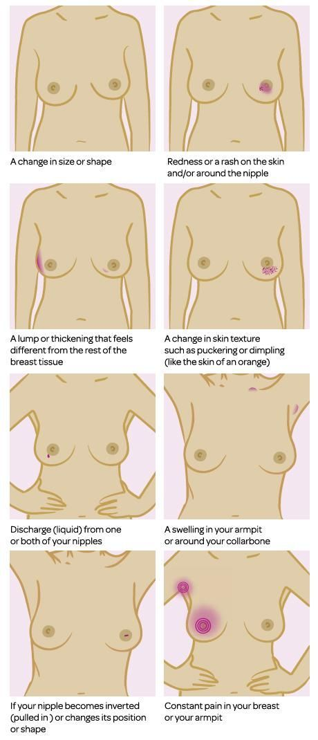 Signs and symptoms of breast cancer can include: a change in size or shape a lump or area that feels thicker than the rest of the breast a change in skin texture such as puckering or dimpling (like the skin of an orange) redness or rash on the skin and/or around the nipple your nipple has become pulled in or looks different, for example, changed its position or shape The liquid that comes from the nipple without squeezing