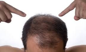 Do you want to stop hair fall and regain? #hair #hairfall #medicine http://haircarerome.blogspot.com