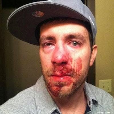 Straight Guy Gets Beaten Up For Calling Out A Woman ...