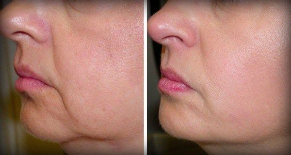 two ingredients to fight wrinkles and tighten skin