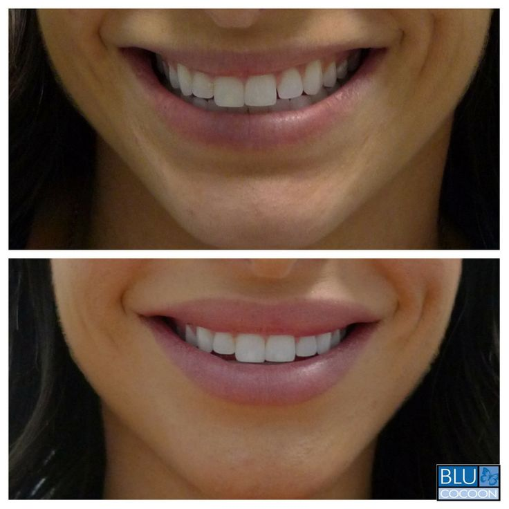 There's nothing like natural-looking, fuller lips to make a gorgeous smile s…