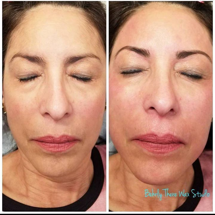 Full face wax. This wax includes 4 or more areas of the face. Here we waxed the forehead brows lip chin sideburns and cheeks! #waxstudio #dayton #ohio #waxing #esthetician #brazilianwaxing #eyebrowwaxing #lashlift #lashtint #browtint #beforeandafter #facewax