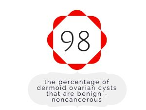 dermoid ovarian cyst (cystic teratoma) fact