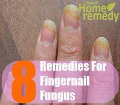 Fingernail Fungus