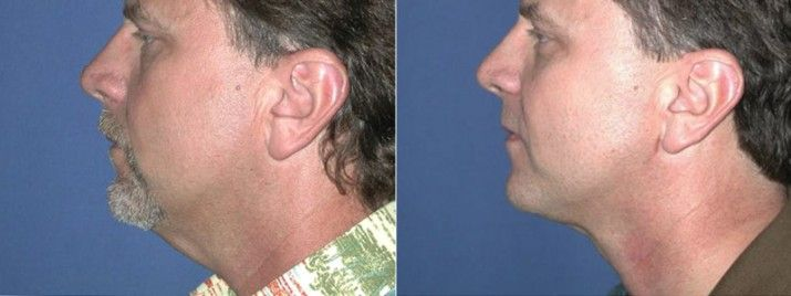 What are the top double chin reduction treatments of 2016?