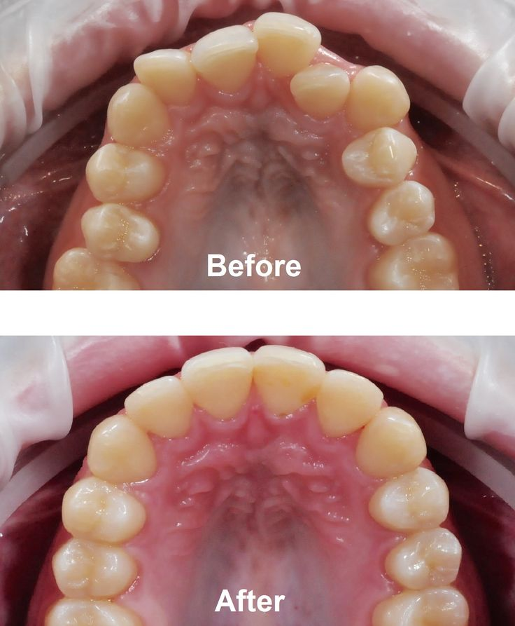 Arch view of before and after braces treatment by Dr. Nathan Le