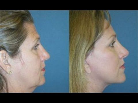 Sexy Double Chin Removal With Facial Exercise Workouts: Lose Face Fat And Get A Leaner Face - YouTube