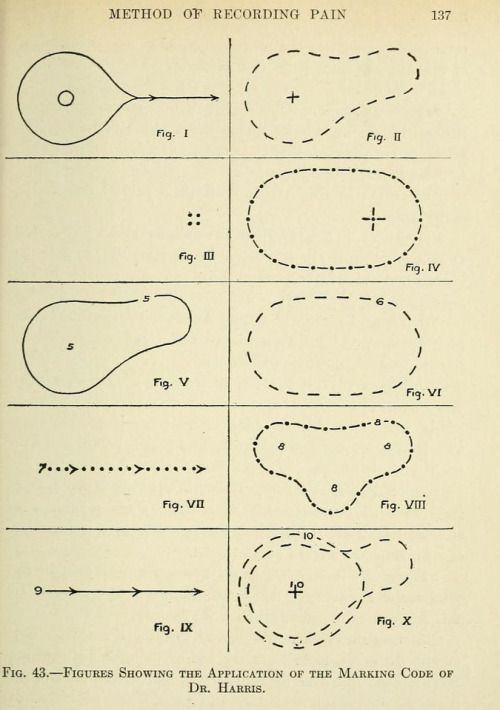 Fig. 43. Method of recording pain.Pain, its origin, conduction, perception and diagnostic significance. 1914.