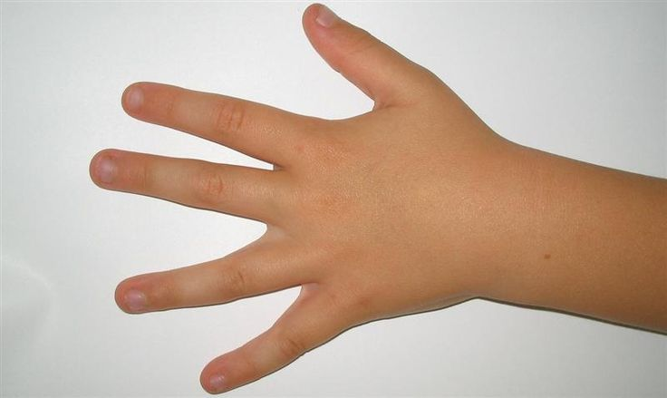 Discoloration of Nails - What do Your Nails Say about Your Health?