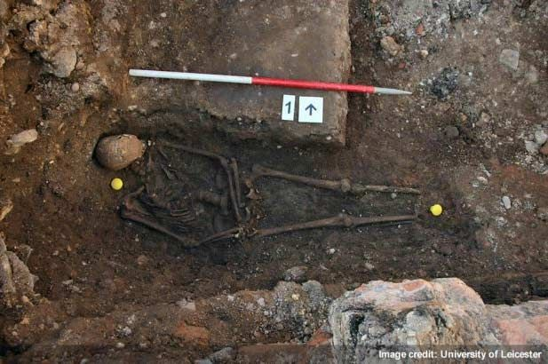 The remains of King Richard III, showing a curved spine and signs of battle trauma.