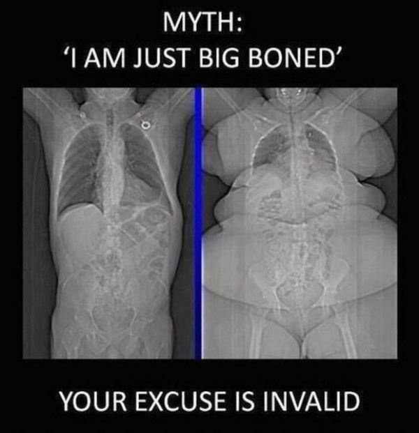 Just Big Boned huh? Always remember X-ray and CT techs see right through you :)
