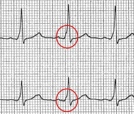 Wolff Parkinson White Syndrome (WPW)-- a fairly rare heart condition in which an extra electrical pathway between the atria and ventricles causes tachycardia. The extra pathway is present at birth and is detected in about 4 out of every 100,000 people. The episodes of tachycardia usually aren't life-threatening, but serious heart problems can occur. Treatment with ablation can permanently correct the problem.