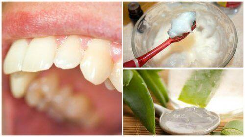 Rimuovere la placca dentale in modo naturale
