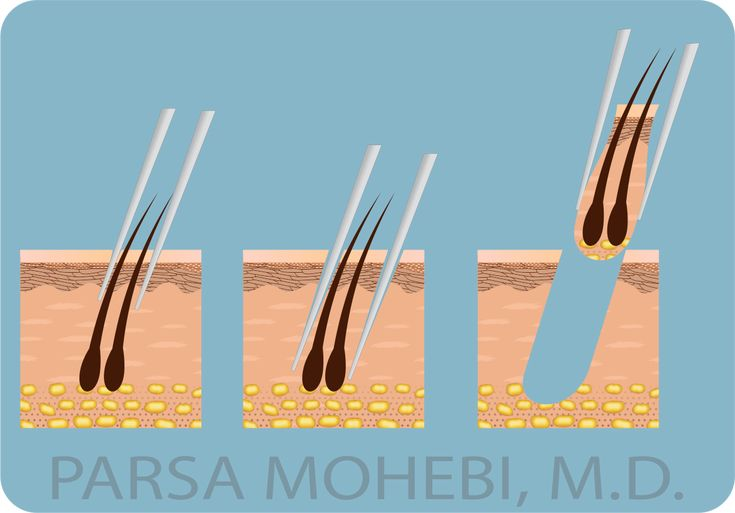 A look into an #FUE (Follicular Unit Extraction) procedure.