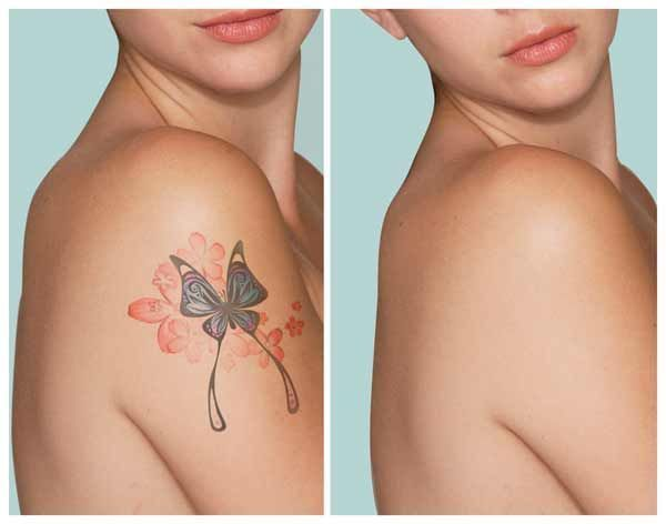 Free video reveals shocking method to remove tattoos naturally and safely! From home and without laser. The laserless tattoo removal guide. Laser removal damages skin cells When you go into a laser removal consultation, either the doctor or his... #tattooremovalnatural