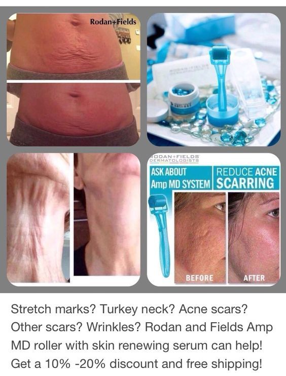 Stretch Marks? Turkey neck? Acne scars? Other scars? Wrinkles? Rodan and Fields Amp MD roller with skin renewing serum can help!!! Get a 10%-20% discount and free shipping!!!