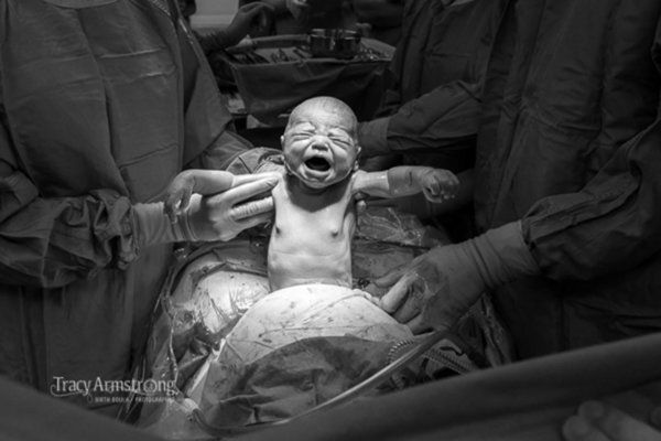 While most birth photography focuses on natural childbirth, this stunning photo proves that C-section births are no less dramatic!