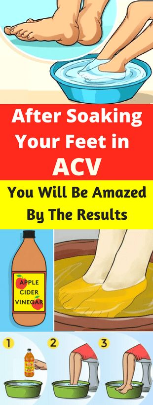After Soaking Your Feet in ACV, You Will Be Amazed By The Results - Workout Hit