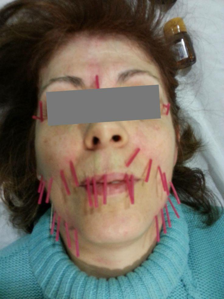 #Lifting facial con acupuntura. Desde la primera sesión se puede apreciar la elevación del óvalo facial.