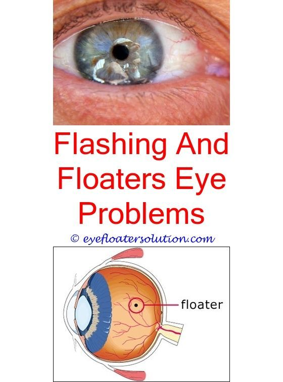 Perfect Eye Floaters Worse When Stressed   Seeing Floaters In One Eye.silver In Eyes  Floaters