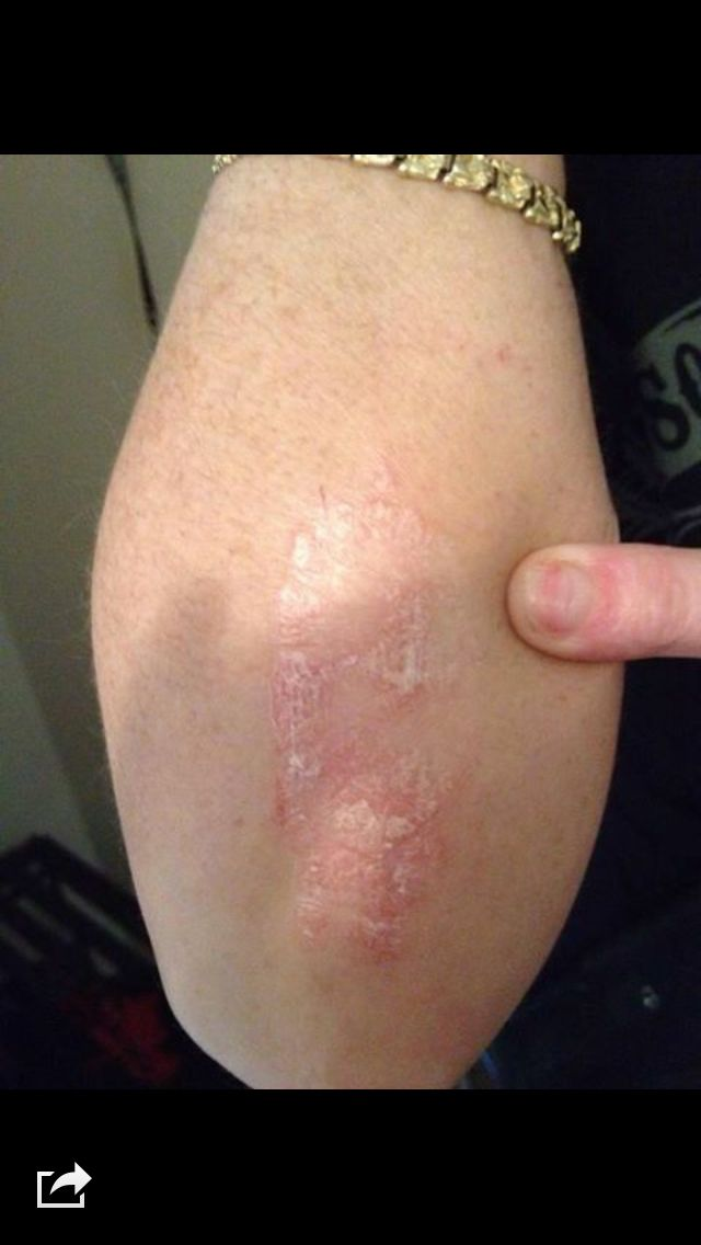 Results on psoriasis