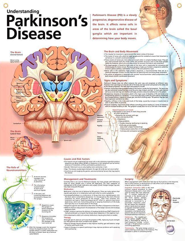 Understanding Parkinson\'s Disease anatomy poster lists symptoms such ...
