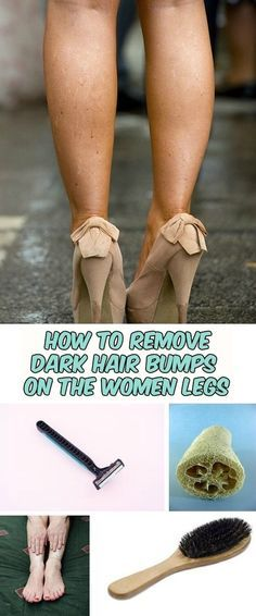 How to remove dark hair bumps on the women legs - WomenIdeas.net