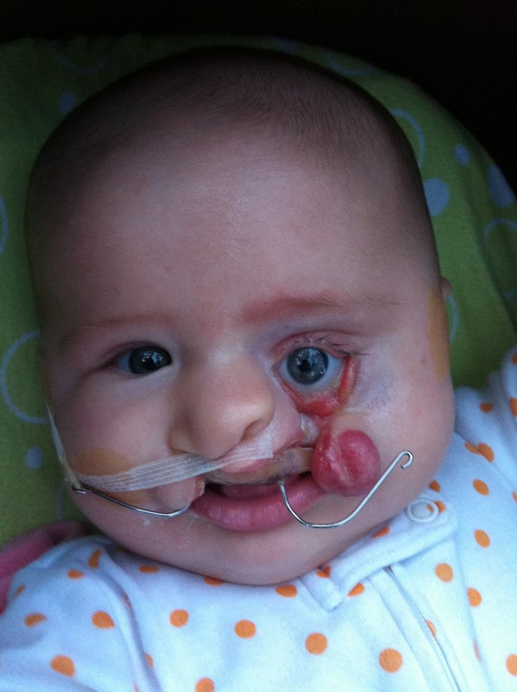 What It S Like Having A Cleft Lip Palate Baby Cute
