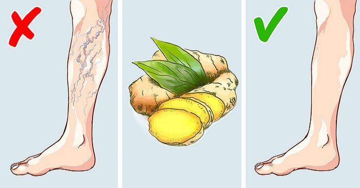 edema picior varicoase vene)