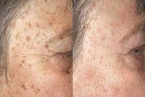 This-is-How-To-Prevent-And-Remove-Age-Spots-Naturally-300x160