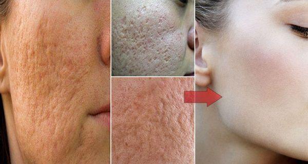 Jediná ingrediencia, ktorá si poradí s pórmi na tvári za okamih a vyčistí vám pokožku!