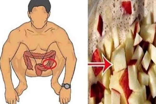 Tisztítsd ki a vastagbeled ezzel, és 20 nap alatt akár több kilót is ledobhatsz!