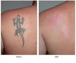 Before you spend a dime on tattoo removal, you need to know something VERY important. Learn about the laserless technique in this offer.The tattoo REMOVAL industry makes a lot more than the artists do on tattoos… For no reason other than the PAIN of having an unwanted tattoo. PAIN that they take to the bank!Laser tattoo removal costs $200-$500 per treatment, $2,000 on average for a full treatment!And it's the worst way to remove a tattoo. These aren't cancer cells we're talking about. Just…