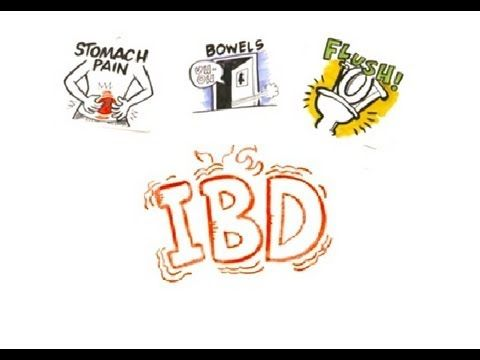 IBD - Crohns Disease Vs Ulcerative Colitis