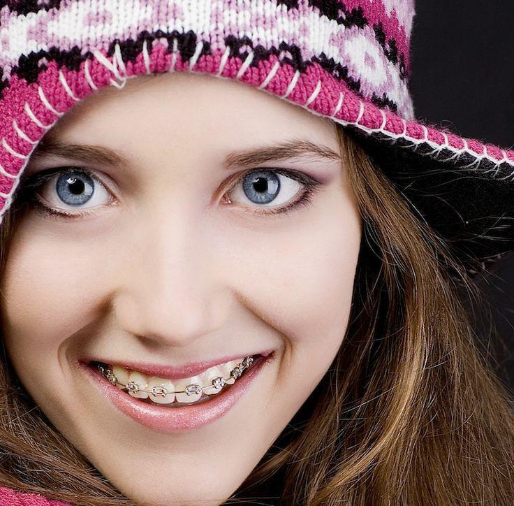 Amazing smile with #braces