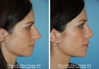 Excess Columellar Show Photo Gallery - Seattle Washington - Nose Surgery Before and Afters Bellevue