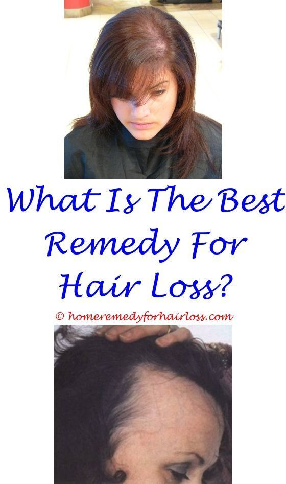 aclaris hair loss - hair loss problems solution in hindi