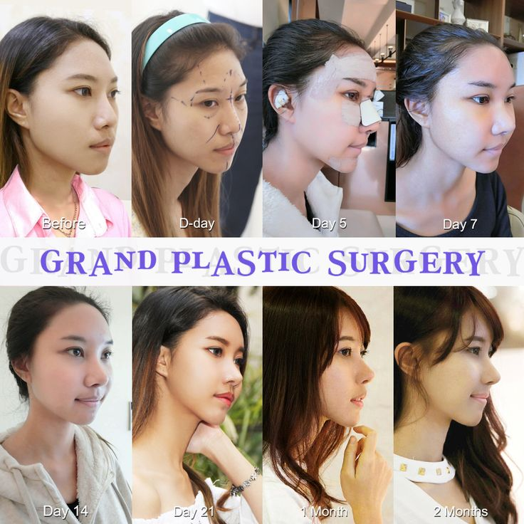 Best Places In The World To Have Plastic Surgery: Grand Plastic Surgery Korea