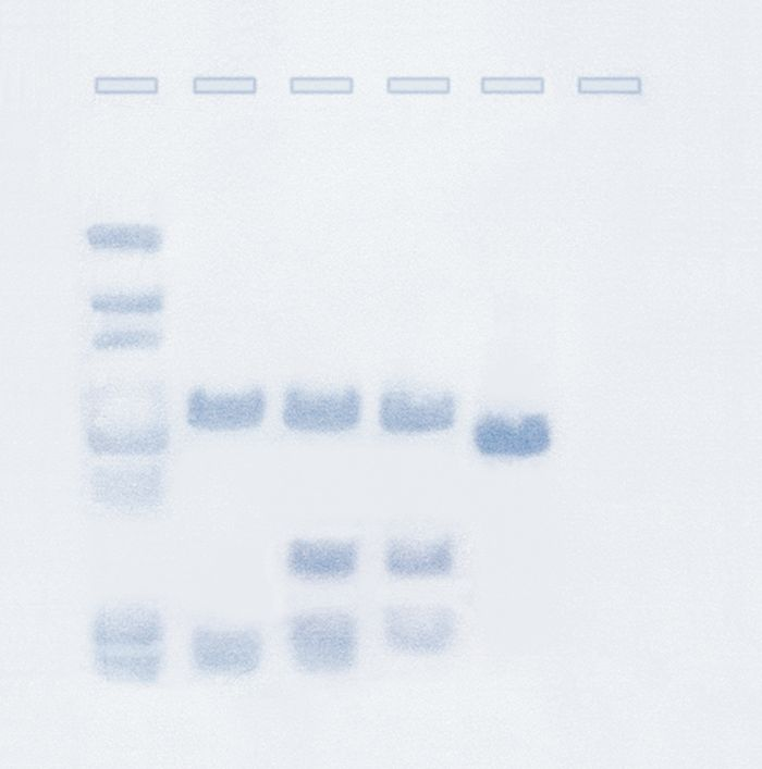 207 - Southern Blot Analysis