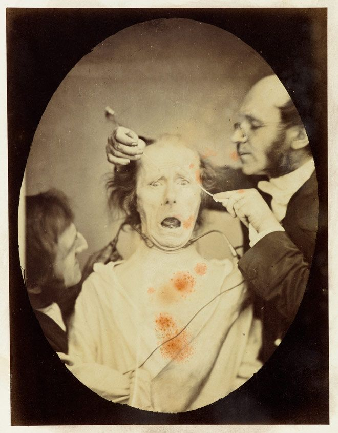 19th century experiment in the use of electrical stimulation to create facial expressions.: Experimento Mai, Darwin Con, Darwin Experiment, Facials Expressions, Art Photos Comic Film, Experimento De, Charles Darwin, Los Experimento, De Darwin