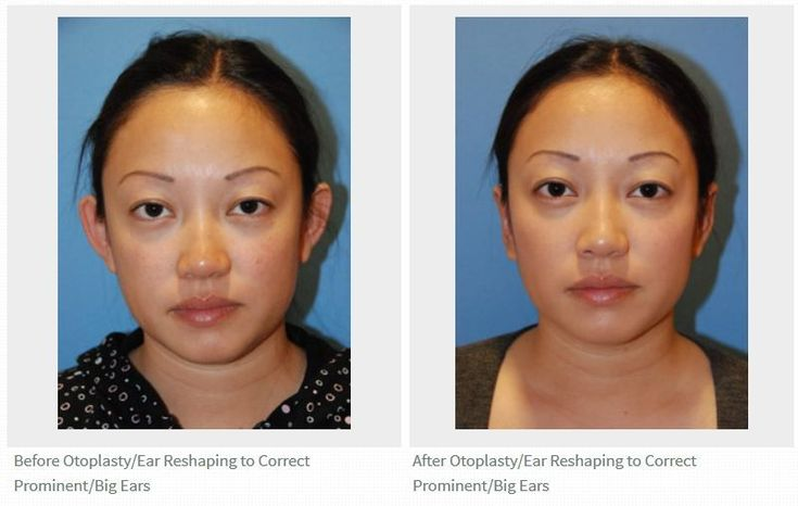 Seattle | Bellevue otoplasty ear plastic surgery for prominent ears before and a…