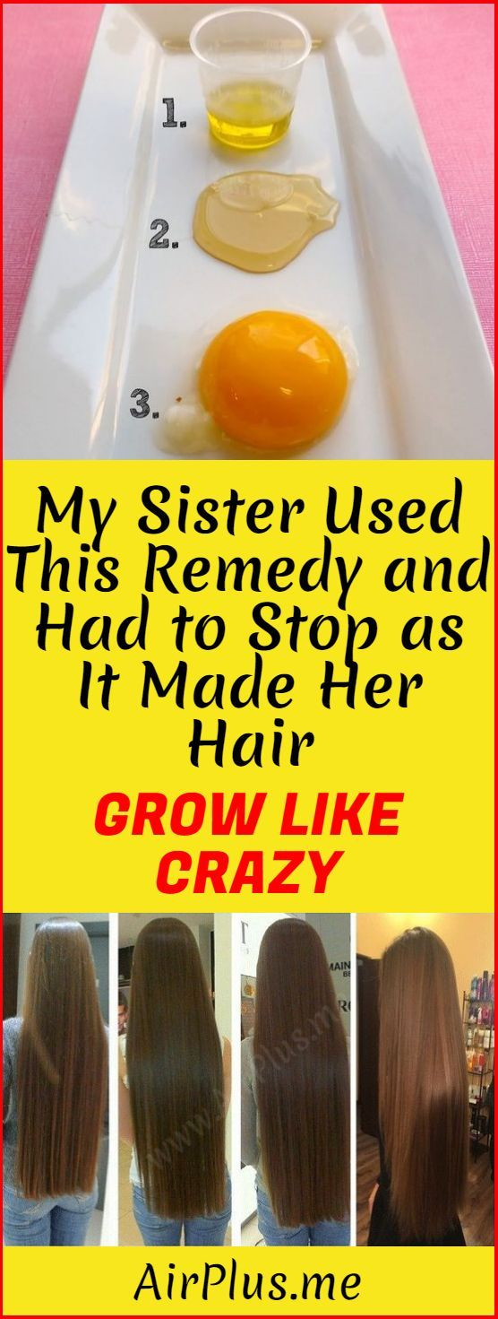 My Sister Used This Remedy And Had To Stop as it Made Her Hair Grow Like Crazy!