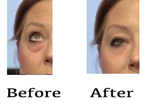Instantly Ageless Anti-Aging Youth Serum Visible Immediate Results Get Rid of Under Eye Circles and Remove Wrinkles #ageless #beautyskin