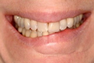 crooked things | Lip Service: How to Evaluate a Crooked Smile | Spear Education