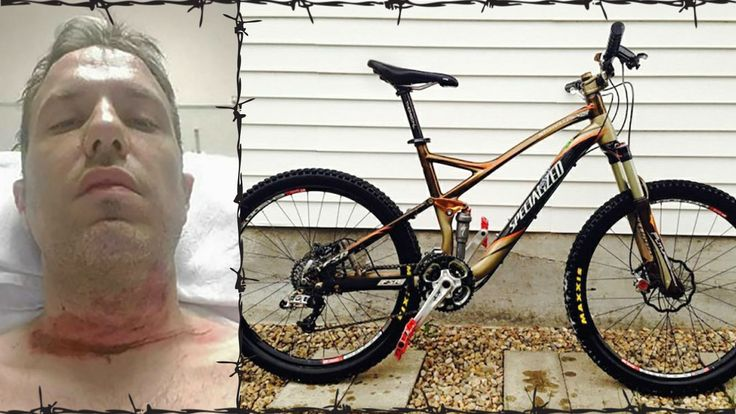 Sad story of barbed wire on the mountain bike trail doesn't add up.   LEARN MORE: http://snip.ly/cjrka?utm_content=buffer0aac1&utm_medium=social&utm_source=pinterest.com&utm_campaign=buffer   #mountainbike #trail #merlinview #gofundme #fraud #Specialized #Stumpjumper