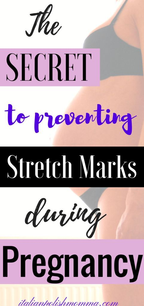 Worried about preventing stretch marks during pregnancy? Here are secrets that I used to prevent stretch marks during 3 pregnancies! These stretch mark prevention tips actually worked and can work for you too! Prevent stretch marks during pregnancy! #stretchmarks #stretchmarkprevention #stretchmarkcreams #stretchmarksduringpregnancy