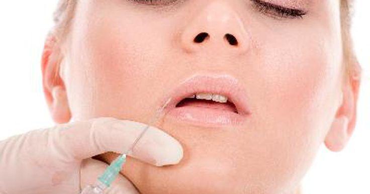 Técnica de inyección de bótox. El bótox es una forma de botulismo que se inyecta en los músculos faciales. Paraliza o debilita los músculos que forman las arrugas. Las inyecciones de bótox sólo las debe aplicar un profesional preparado en un lugar estéril. Los resultados de las inyecciones normalmente duran alrededor de 120 días, después de los cuales necesitarán ser retocadas ...