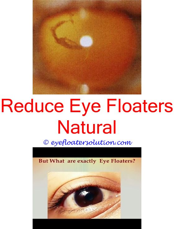 Images - Over masturbation causing eye floaters