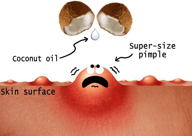 Coconut oil drips on pimple for acne treatment